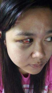 Rumah Tangga Diterpa Prahara, Istri lapor Polisi Karena Suami Lakukan KDRT
